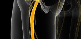 Sciatique : les causes de la douleur