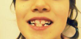 Comment ne plus avoir les dents du bonheur ?